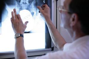 Karl O. Fischer diagnostiziert Rückenschmerzen